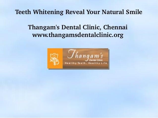 TeethWhiteningRevealYourNaturalSmile    ThangamsDentalClinic,Chennai     www.thangamsdentalclinic.org            ...