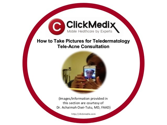 How to Take Pictures for Teledermatology        Tele-Acne Consultation         (Images/information provided in            ...