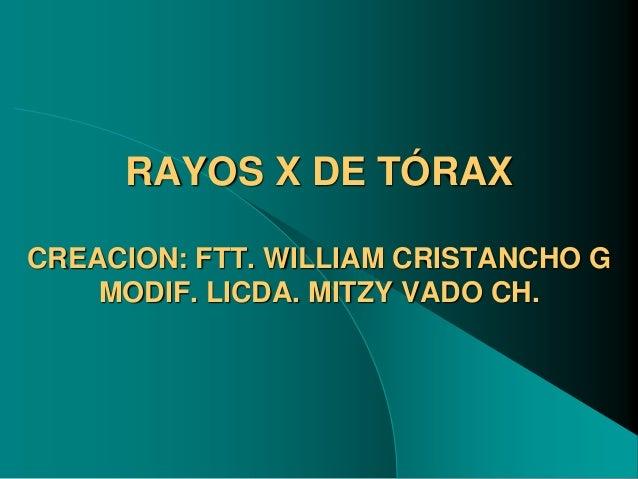 RAYOS X DE TÓRAX CREACION: FTT. WILLIAM CRISTANCHO G MODIF. LICDA. MITZY VADO CH.