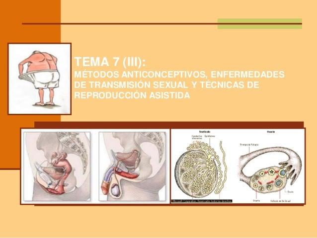TEMA 7 (III): MÉTODOS ANTICONCEPTIVOS, ENFERMEDADES DE TRANSMISIÓN SEXUAL Y TÉCNICAS DE REPRODUCCIÓN ASISTIDA