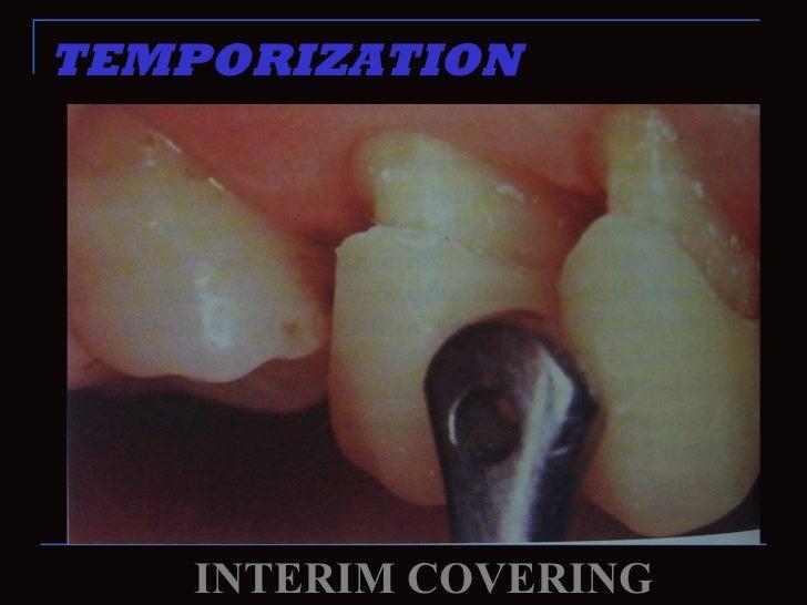 TEMPORIZATION    INTERIM COVERING
