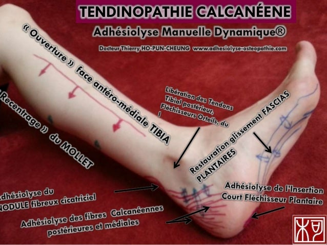 TENDINOPATHIE CALCANÉENE