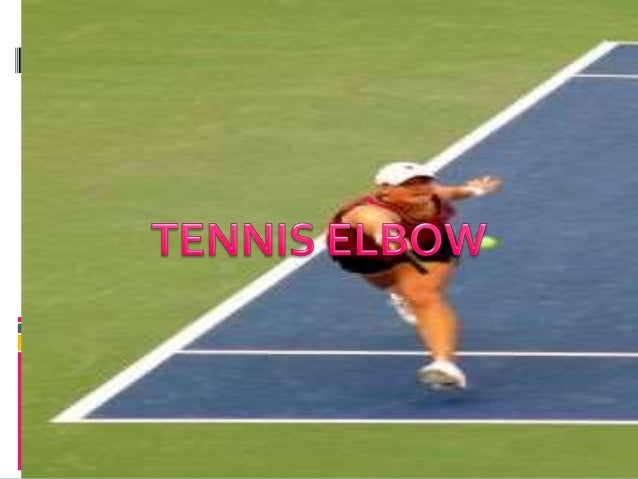 TENNIS ELBOW  TENNIS ELBOW SYNDROME ENCOMPASSES LATERAL , MEDIALAND POSTERIOR ELBOW SYMPTOMS.  COMMONLY ENCOUNTERED IS L...
