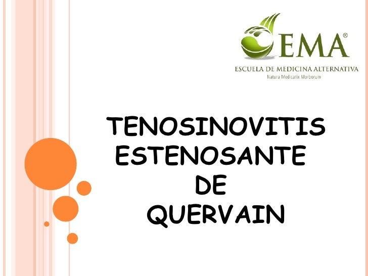 TENOSINOVITIS ESTENOSANTE  DE  QUERVAIN