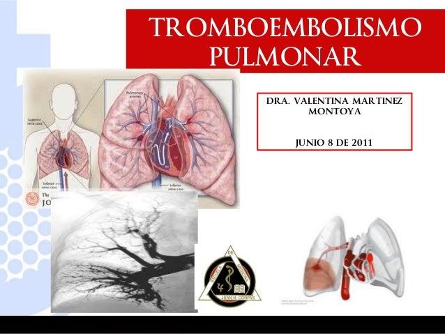 Tep caso clinico viernes 8 junio de 2012.final