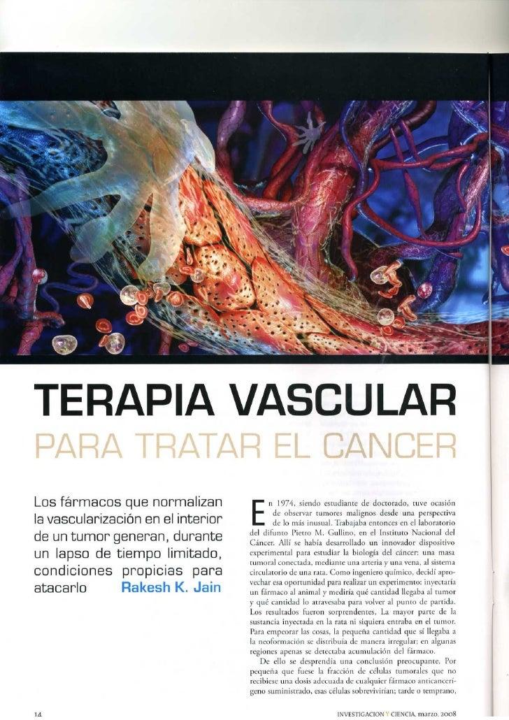 Terapia Vascular para tratar el cáncer
