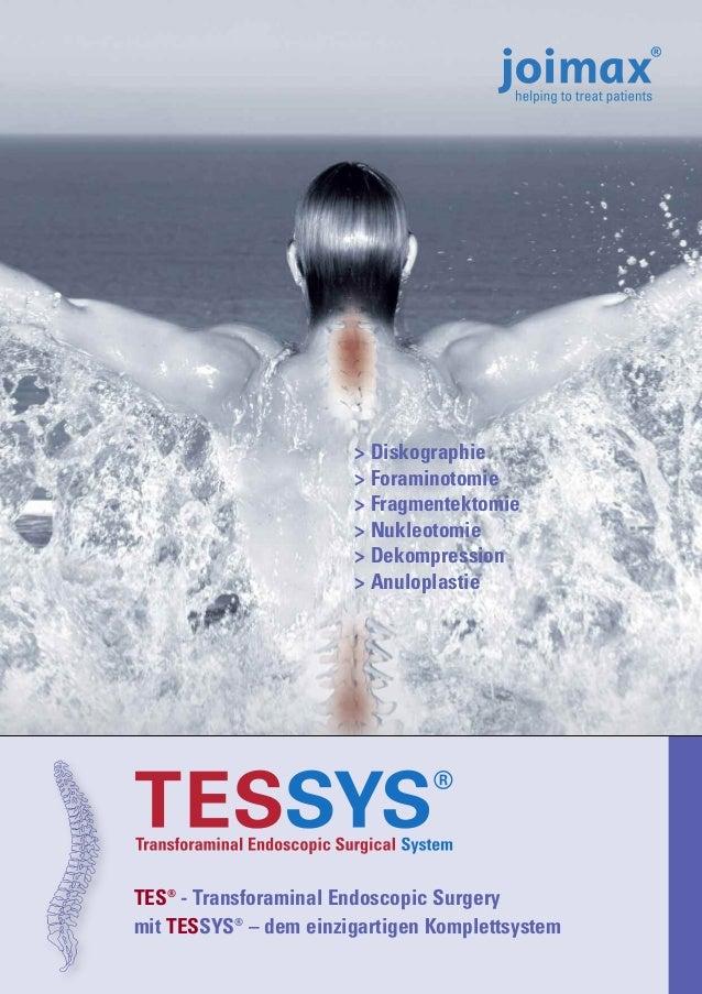 > Diskographie > Foraminotomie > Fragmentektomie > Nukleotomie > Dekompression > Anuloplastie  TES® - Transforaminal Endos...