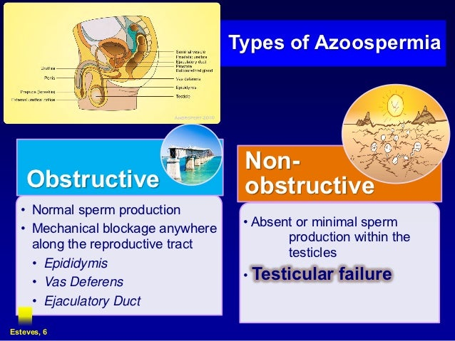 klinefelter syndrome the testicular dysgenesis and infertility Klinefelter syndrome (47,xxy or ks) is the commonest aneuploidy  testis,  testicular dysgenesis syndrome (tds) and infertility [31–38.