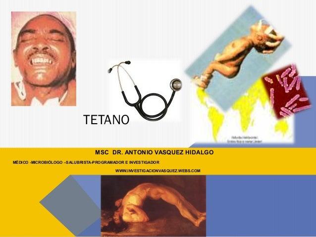 TETANO MSC DR. ANTONIO VASQUEZ HIDALGO MÉDICO -MICROBIÓLOGO –SALUBRISTA-PROGRAMADOR E INVESTIGADOR WWW.INVESTIGACIONVASQUE...