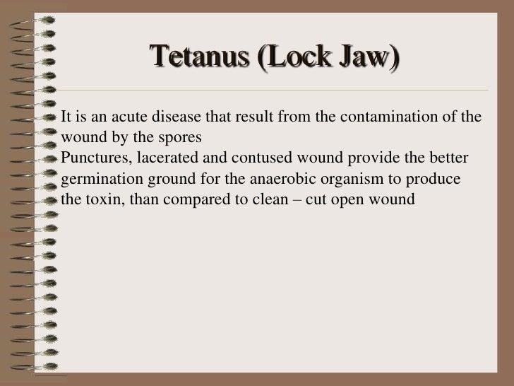 Tetanus (lock jaw)