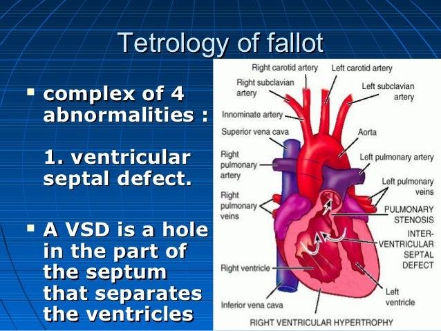 Tetrology of fallot   complex of 4    abnormalities :    1. ventricular    septal defect.   A VSD is a hole    in the pa...