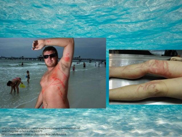 oral steroids no water retention