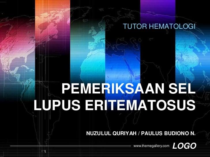 TUTOR HEMATOLOGI <br />PEMERIKSAAN SEL LUPUS ERITEMATOSUSNUZULUL QURIYAH / PAULUS BUDIONO N.<br />1<br />