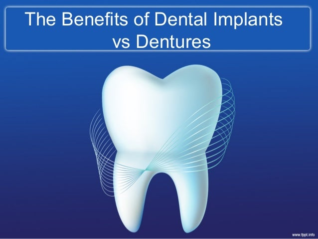 The Benefits of Dental Implantsvs Dentures