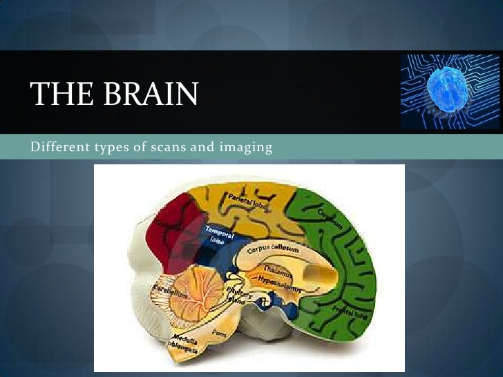 The brain - scans and imaging