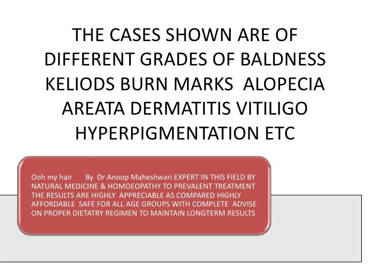 THE CASES SHOWN ARE OF   DIFFERENT GRADES OF BALDNESS   KELIODS BURN MARKS ALOPECIA     AREATA DERMATITIS VITILIGO      HY...