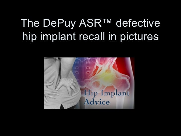 The DePuy ASR™ defectivehip implant recall in pictures