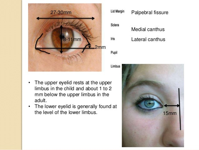 The gallery for --> Palpebral Fissure