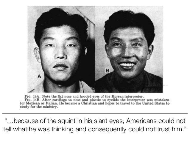 Asian Americans Criticize Eyelid Surgery Craze