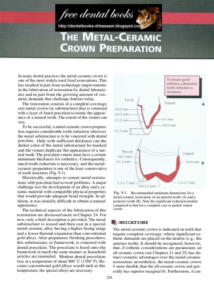 The Metal Ceramic Crown Preparation