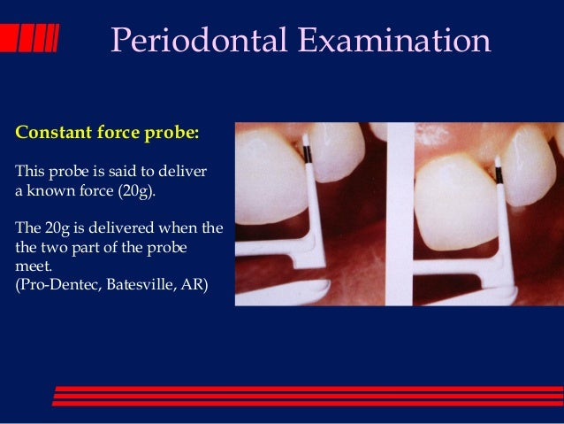 significance of bleeding on probing during periodontal exam Effect of periodontal disease on preeclampsia (pli), pocket depth (pd), clinical attachment level (cal), bleeding on probing as periodontal examination.