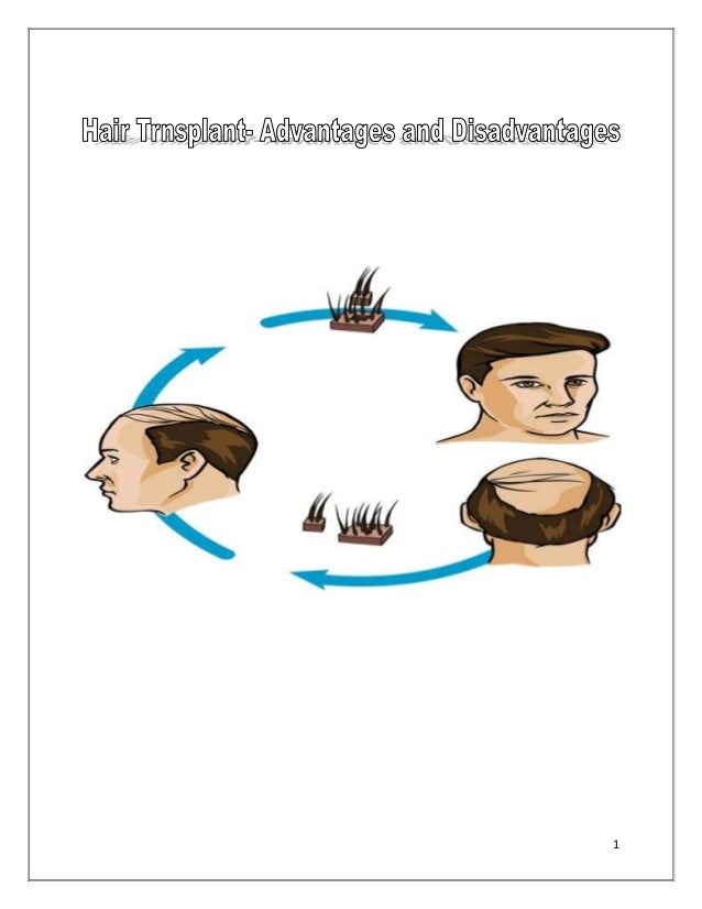 The Pros and Cons of Undergoing a Hair Transplant