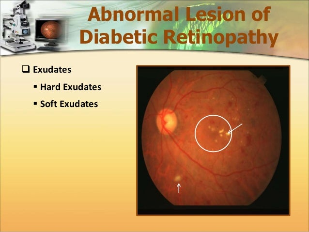 Automatic Detection Of Diabetic Maculopathy From Fundus Images Using Image Analysis Techniques on Hard Color By Number For Adults