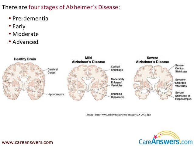 "alzheimer s disease in the early years A few years later, alzheimer's may be we have to start early before marked 35 responses to "" uncovering the early silent stages of alzheimer's disease."