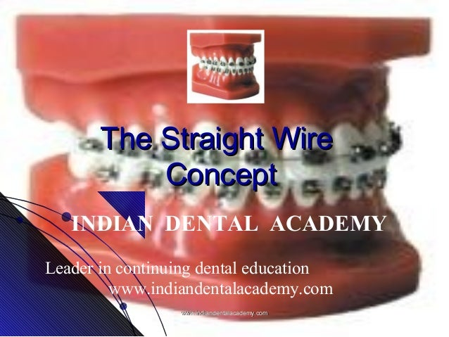 The Straight Wire Concept INDIAN DENTAL ACADEMY Leader in continuing dental education www.indiandentalacademy.com www.indi...