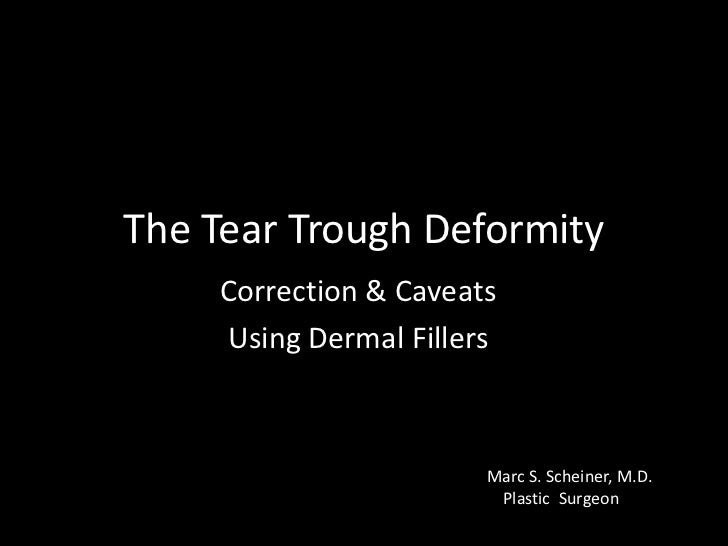 The Tear Trough Deformity