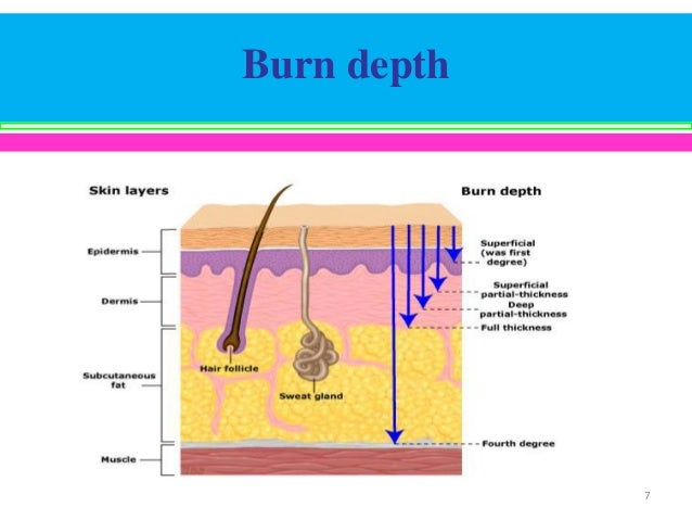 The Thermal Injury