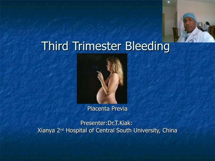 Third Trimester Bleeding Placenta Previa Presenter:Dr.T.Kiak:  Xianya 2 nd  Hospital of Central South University, China