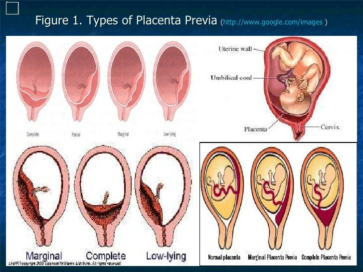 Progesterone in Patients With Placenta Previa - Full Text ...