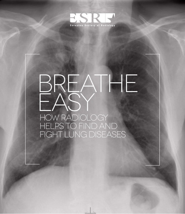 BREATHE EASY HOW RADIOLOGY HELPS TO FIND AND FIGHT LUNG DISEASES