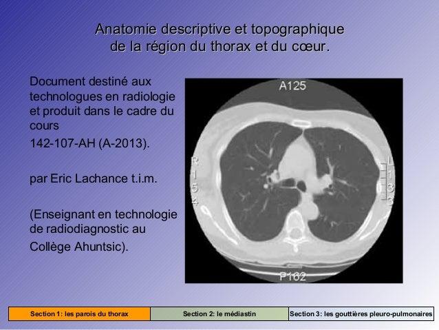 Anatomie descriptive et topographique de la région du thorax et du cœur. Document destiné aux technologues en radiologie e...