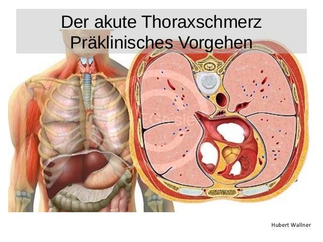 Hubert Wallner  Der akute Thoraxschmerz  Präklinisches Vorgehen