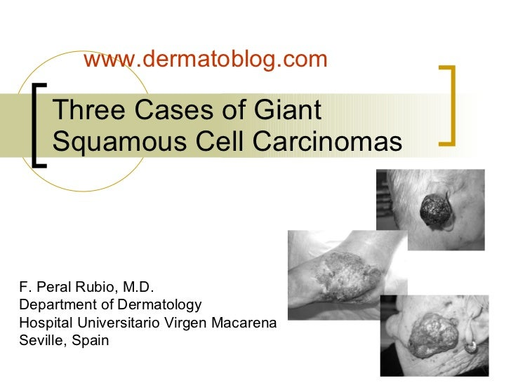 Three cases of giant squamous cell carcinomas