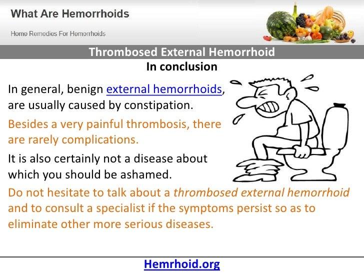 Can Viagra Aggravate Hemorrhoids