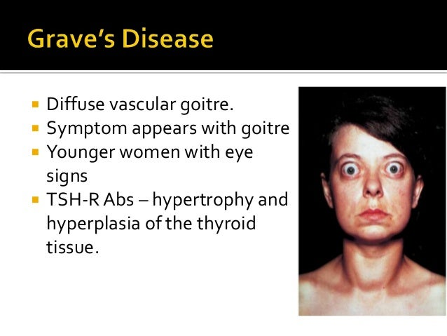 Graves disease symptoms