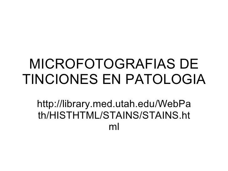 MICROFOTOGRAFIAS DE TINCIONES EN PATOLOGIA http://library.med.utah.edu/WebPath/HISTHTML/STAINS/STAINS.html