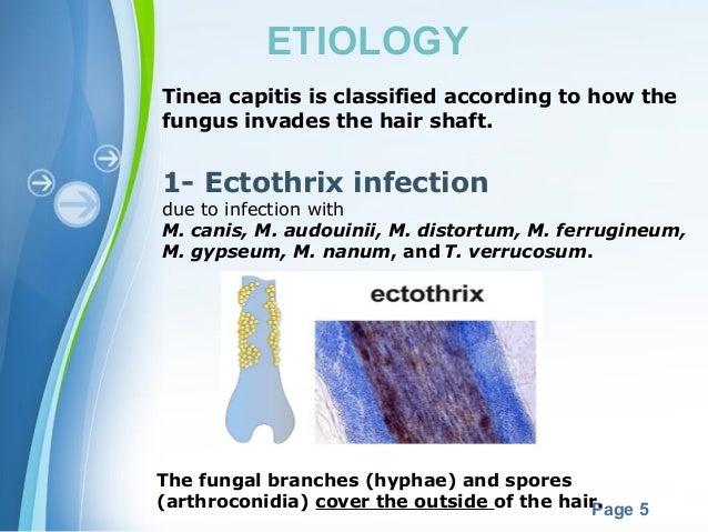 Ringworm of the Body (Tinea Corporis) - Healthline