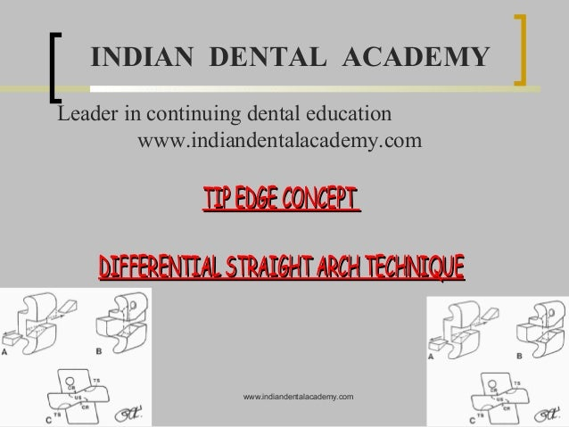 INDIAN DENTAL ACADEMY Leader in continuing dental education www.indiandentalacademy.com  TIP EDGE CONCEPT DIFFERENTIAL STR...