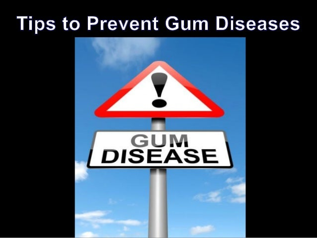 Tips to Prevent Gum Diseases