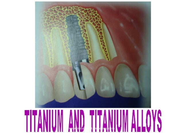 Titanium  and  titanium alloys/ /certified fixed orthodontic courses by Indian dental academy