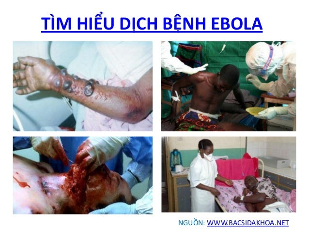 Image result for Benh Ebola