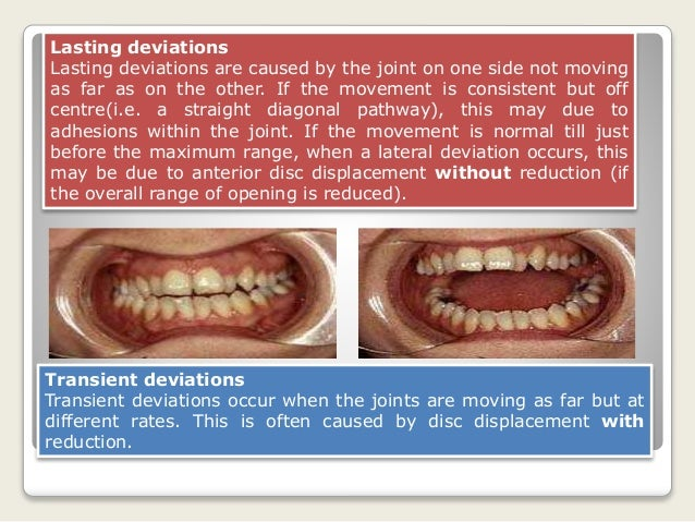 Lock Jaw Exercises Acute Jaw Locking Episodes Can