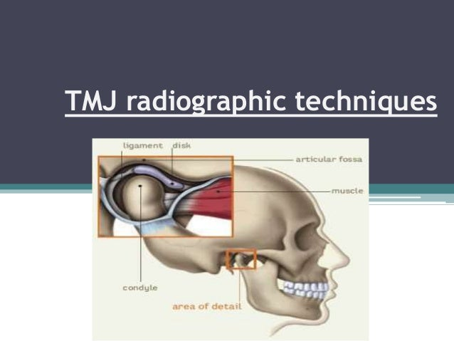 TMJ radiographic techniques