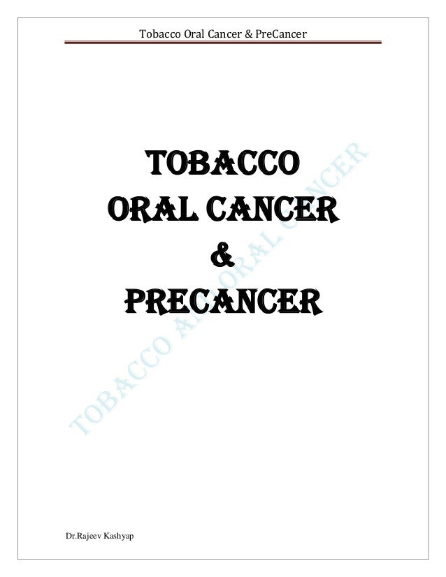 Tobacco and oral cancer  cancer