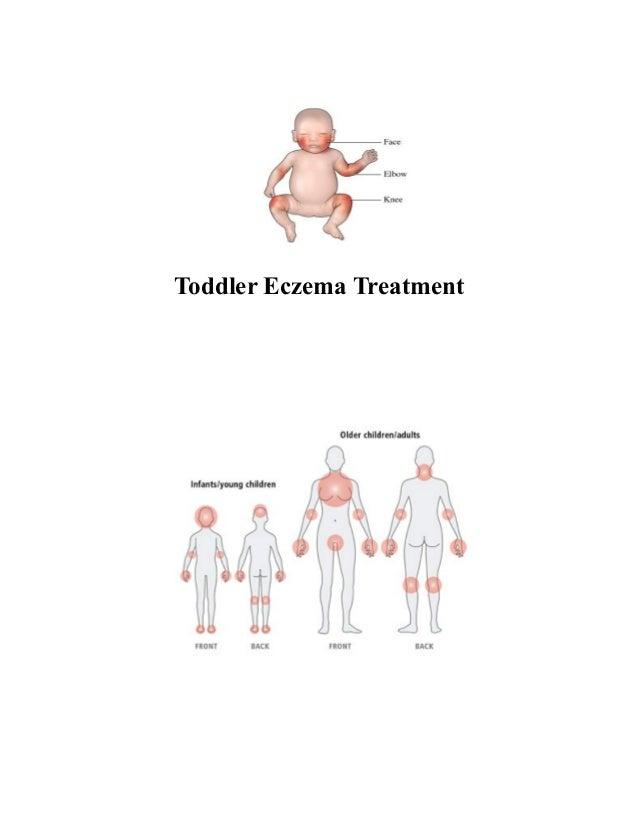 Toddler Eczema Treatment