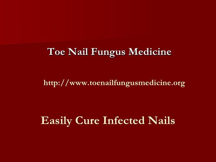 Toe nail fungus medicine:- An Effective Medicine for Toe Nails Fungus